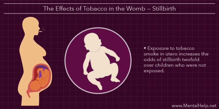 zz Pregnancy, Tobacco, and Stillbirth